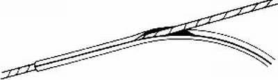Wantenschoner Davis 4 mm